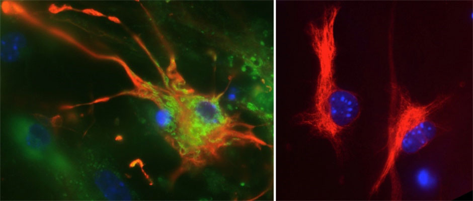 A brain astrocyte cell (colored red) infected with Zika virus, shown in green (left panel), alongside an uninfected astrocyte (right panel)
